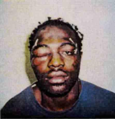 Rodney King after brutal beating by LAPD cops, which led to a widespread rebellion by the Black community.