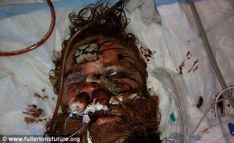 Kelly Thomas died from his injuries after Fullerton, CA police tasered and beat him.