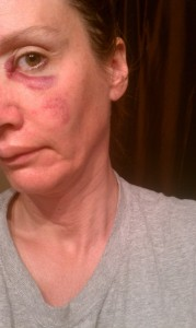 Police file photo of some of Schlenkerman victim's injuries after he beat her in face with his belt.