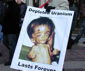 Iraqi baby deformed by depleted uranium.