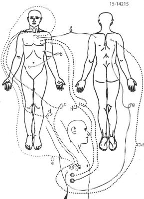 Diagram from Matthews' autopsy report. The gunshot wounds shown in bottom drawing underneath arm, with rings around them, are the ones referred to as close range in lawsuit.