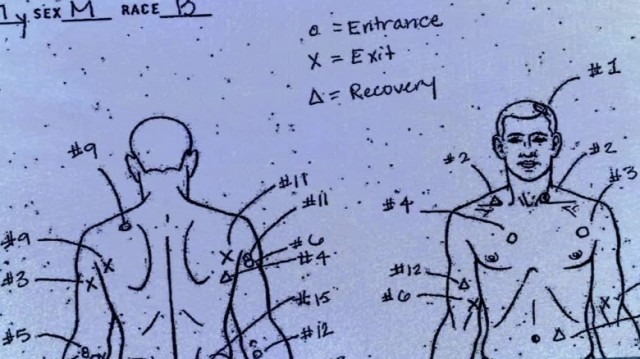 Autopsy drawing shows 16 bullets that entered Laquan McDonald.