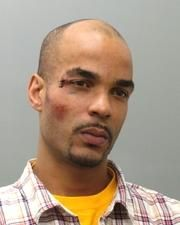 Nicholas Green, beaten up during arrest, charged with interfering with police radio transmission.