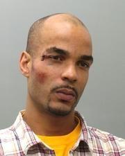 Nicholas-Green-Ferguson-bruised