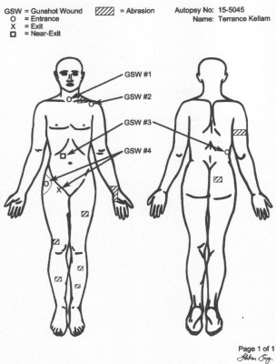 Terrance Kellom autopsy diagram shows he was shot in the back as family and attorney claimed.