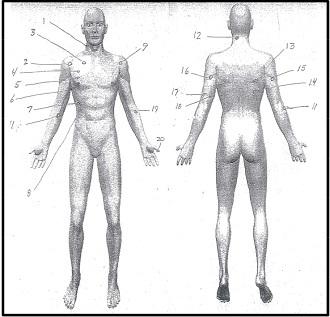 hamilton_autopsy